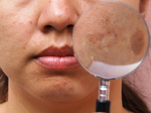 Melasma During Pregnancy Causes Symptoms Diagnosis And Treatment