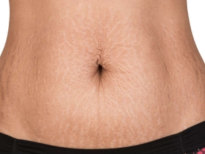 Ways To Prevent Stretch Marks On The Shoulders
