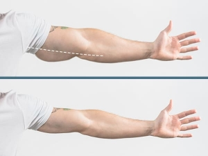 Easy Exercises To Get Rid Of Flabby Arms Forever