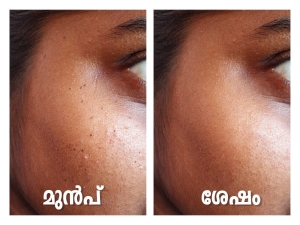 Natural Remedies To Remove Dark Spot On Cheeks