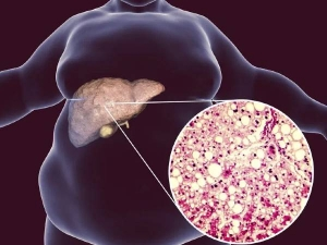 Fatty Liver Causes Symptoms Diagnosis And Treatment