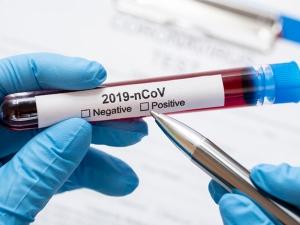 Thailand Begins Coronavirus Vaccine Trials On Monkeys
