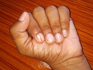 Black Line On The Nail Causes And Treatment