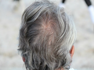 Causes Of Your Hair Turned Grey Early
