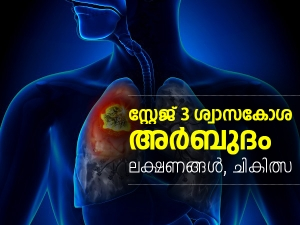 What Is Stage 3 Lung Cancer Symptoms Treatment And All You Need To Know
