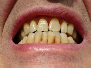 Best Foods For Healthy Teeth And Gum