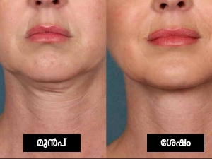 Home Remedies To Treat Neck Wrinkles In Malayalam