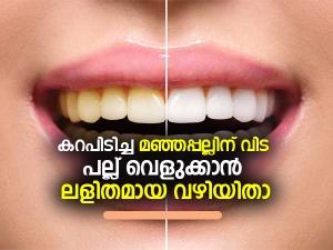 Simple Ayurvedic Ways To Whiten Your Teeth