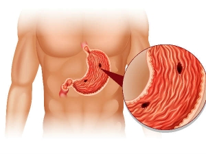 Signs Of Unhealthy Gut And Tips To Improve Gut Health