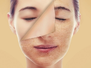 Simple Winter Skincare Rules To Follow For Dry Skin