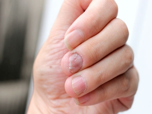 Try These Tips To Strengthen Your Brittle Nails