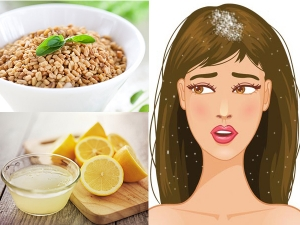 Natural Ways To Remove Dandruff Permanently