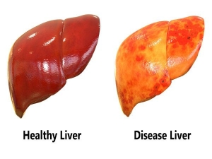 Fatty Liver And Liver Diseases Signs Symptoms And Treatment
