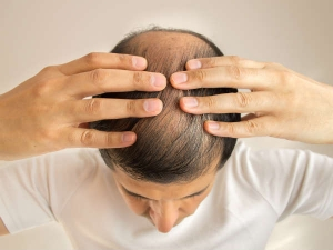 Tips To Regrow Hair On Bald Spot