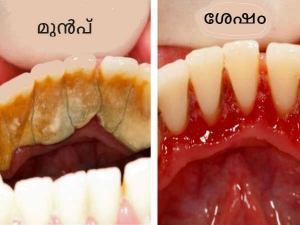 How To Prevent Plaque And Tartar From Forming