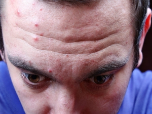 Symptoms On Face That Reveals Your Health Issues
