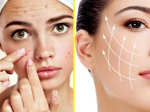 Multani Mitti Face Packs To Treat Acne