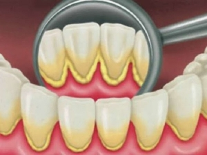 Salt And Honey For Teeth Plaque