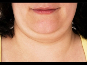 Lose Face Fat With Home Remedies And Easy Workouts