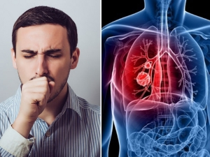 World Tuberculosis Day Diet Tips For Tuberculosis Management