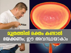 Blood In Urine In Men Causes Risk Factors Diagnosis And Treatment In Malayalam