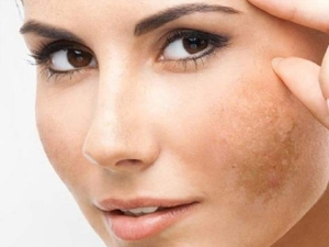Skin Pigmentation Causes And Ways To Avoid It