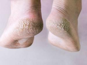 Vinegar Foot Soak To Get Soft Wrinkle Free Feet
