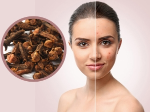 Clove Face Mask To Clear Acne
