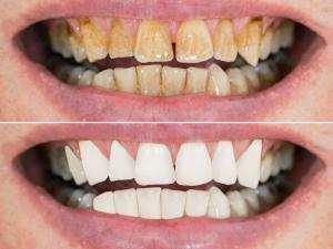 Salt And Honey Tips For Teeth Whitening