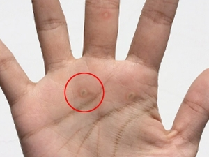 Natural Remedies To Get Rid Of Calluses On Your Palm In Malayalam
