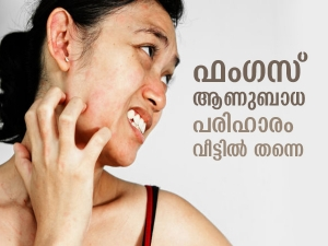 Home Remedies For Fungal Infections In Malayalam