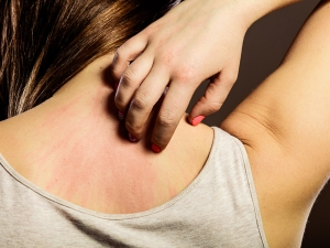 How To Get Rid Of Itchy Skin Bumps
