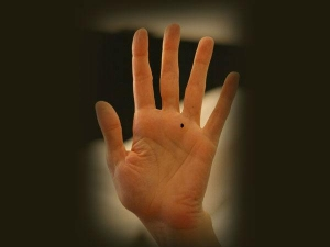 Significance And Meanings Of Moles On Lines In Palm