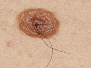 How To Tell Your Moles Are Malignant Or Benign