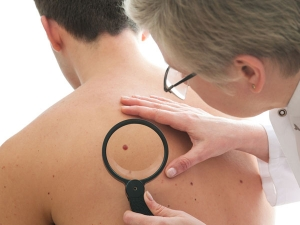 How To Get Rid Of Red Moles Cherry Angioma According To Dermatologists
