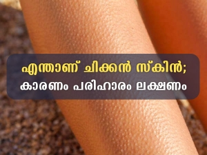 Keratosus Pilaris Chicken Skin Symptoms Causes Treatment And Prevention In Malayalam