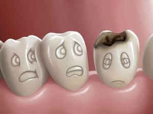 Post Covid Dental Complications In Malayalam