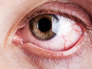 Ayurveda Remedies To Reduce Eye Strain While Working From Home