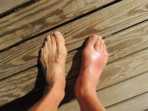 Ways To Ease Bunion Pain Naturally In Malayalam