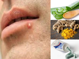 Home Remedies To Remove Pimples On Lips In Malayalam