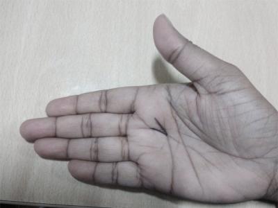 നിങ്ങളുടെ കയ്യില് 'V' ഉണ്ടോ, ആ ഭാഗ്യം